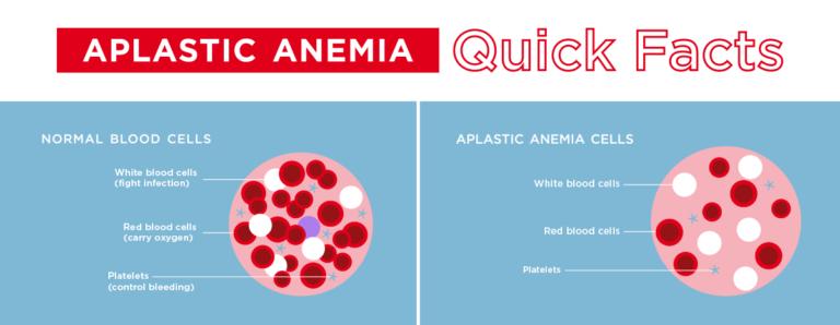 Aplastic Anemia facts
